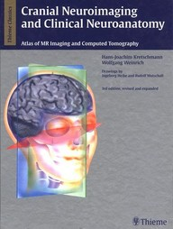 Cranial Neuroimaging and Clinical Neuroanatomy. Magnetic Resonance Imaging and Computed Tomography.