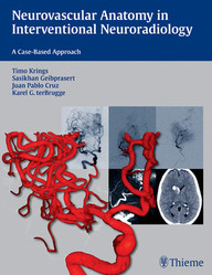 Neurovascular Anatomy in Interventional Neuroradiology. A Case-Based Approach.