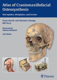 Atlas of Craniomaxillofacial Osteosynthesis. Microplates, Miniplates, and Screws.