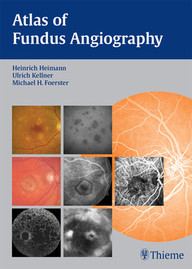 Atlas of Fundus Angiography