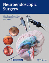 Neuroendoscopic Surgery