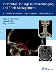 Incidental Findings in Neuroimaging and Their Management: A Guide for Radiologists, Neurosurgeons, and Neurologists