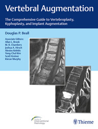 Vertebral Augmentation: The Comprehensive Guide to Vertebroplasty, Kyphoplasty, and Implant Augmentation