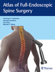 Atlas of Full-Endoscopic Spine Surgery
