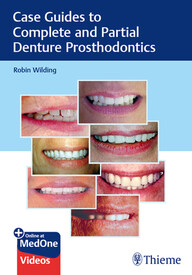 Case Guides to Complete and Partial Denture Prosthodontics