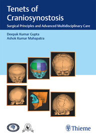 Tenets of Craniosynostosis: Surgical Principles and Advanced Multidisciplinary Care